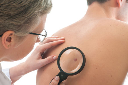دور انزيم نازع الهدرجة اللاكتاتي في علاج اورام الميلانوما المتقدمة
