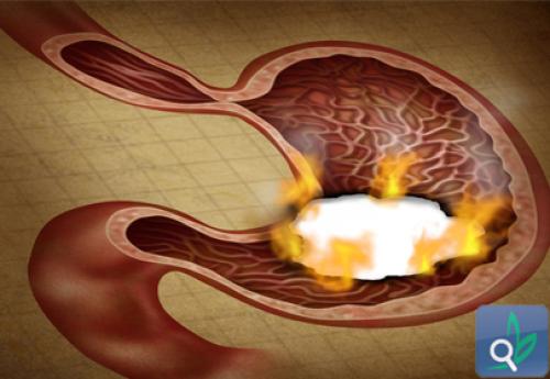 أدوية القرحة قد تتسبب بنقص فيتامين ب 12