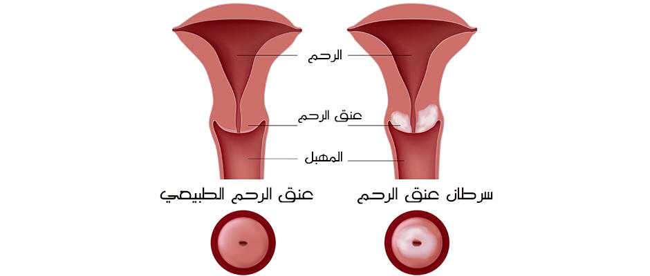 ما الذي يجعلك أكثر عرضة لسرطان عُنق الرحم؟