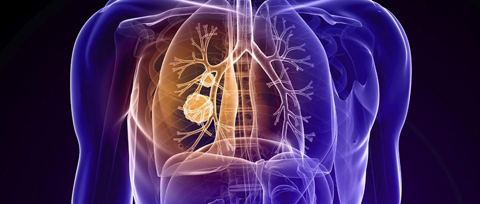 أدوية قد تقلل نسبة وفيات سرطان الرئة