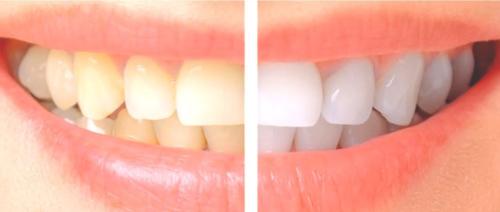 16 نوع من الاطعمة لتقوية الاسنان وتبييضها