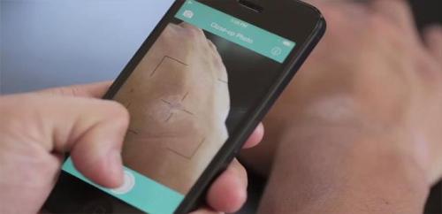 تطبيق جديد يستخدم الذكاء الاصطناعي لتشخيص الأمراض الجلدية
