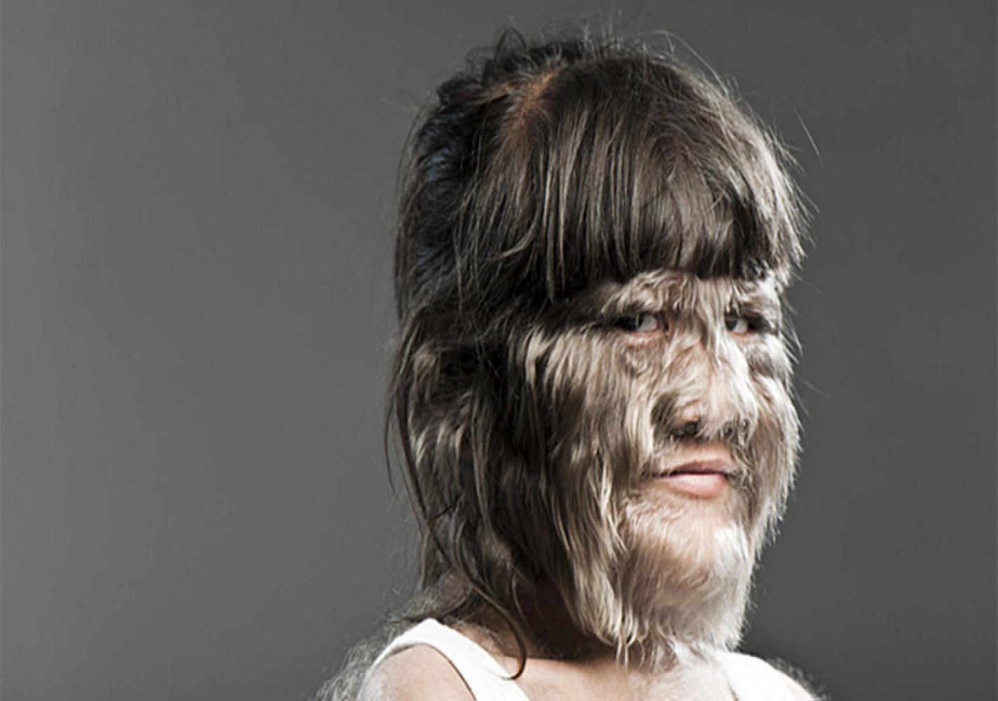 جين المستذئبين هو المسؤول عن نمو الشعر الزائد لدى البعض