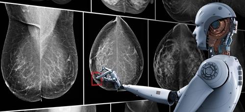نموذج الذكاء الاصطناعي لمعهد ماساتشوستس للتكنولوجيا تعرّف على سرطان الثدي بدقة تماثل أخصائي الأشعة