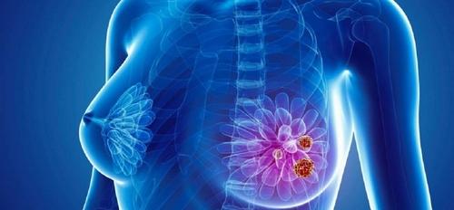 استخدام الضوء في تدمير سرطان الثدي النقيلي