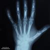 د.مشير زيادي | جراحة العظام والمفاصل
