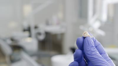 خلع الاسنان بالحوادث