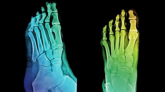 تشوهات أصابع القدم