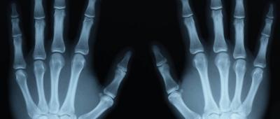 الحماية من الأشعة السينية
