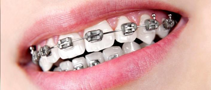 معلومات حول تقويم الاسنان