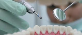 علاقة مرض الايدز بالفم والاسنان
