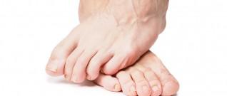 القدم السكرية مفاجئة غير سارة لمريض السكري