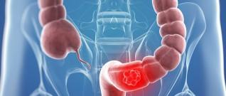 سرطان القولون : مرض ممكن تفاديه