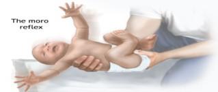 خلع الكتف عند الاطفال حديثي الولادة