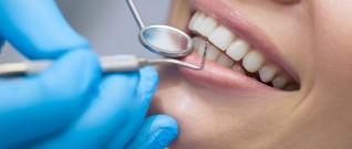 العادات السلبية المضرة بصحة الفم والاسنان