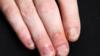 الالتهابات الفطرية للأظافر وعلاجاتها