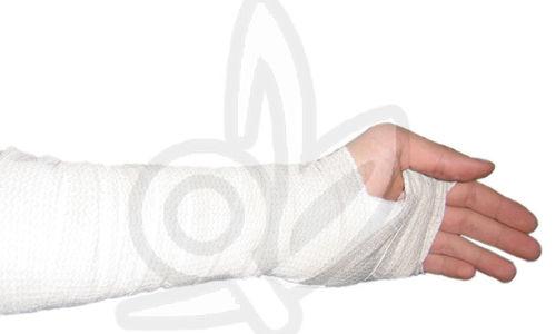 تجبير اليد يمكن أن يخفف آلام التهاب المفاصل