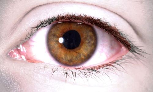 فيتامينات (ج) و (هـ) لهما تأثير  ضئيل على اعتمام عدسة العين