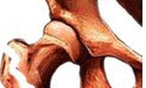 أدلة جديدة على خطر الإصابة بالكسور من أدوية العظام