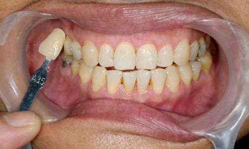 عشرة أشياء يجب أن تعرفها حول تسوس الأسنان