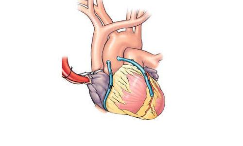 اعطاء الستاتين مباشرة بعد عملية القلب المفتوح لفتح الشريان يقلل الرجفان الأذيني