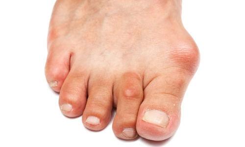 تشوهات اصبع القدم يجب ان تعالج في وقت مبكر