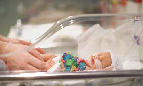 الاطفال الخدج اكثر عرضة للاصابة بمشاكل صحية