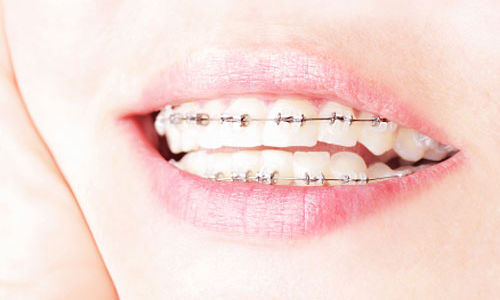 ابحاث تشير إلى أن تقويم الاسنان الثابت افضل و ارخص ثمنا