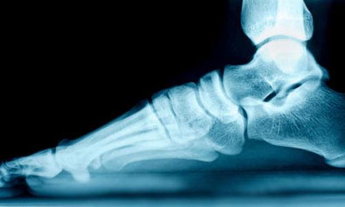 اكتشاف السبب وراء اصابة البالغين بالقدم المسطحة
