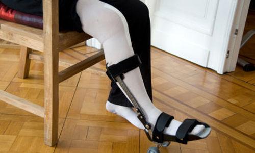 ارتفاع في حالات استبدال الركبة للاصغر سنا