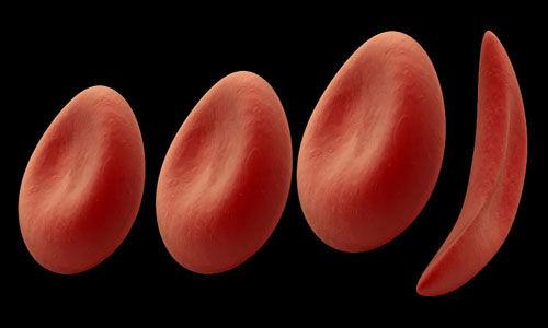 تطوير فحص دم للخلايا المنجلية قد يتوقع شدة المرض