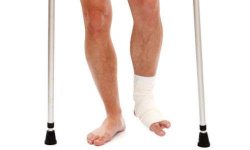 حدوث التجلطات غير شائعة بعد جراحة كسور الكاحل