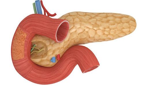 تحديد دواء محتمل لعلاج التهاب البنكرياس الحاد