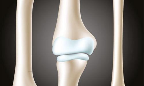 حقن فوق الجافية الستيرويدية تضعف كثافة عظام الحوض