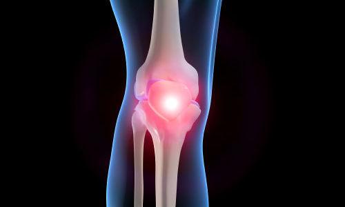 مضادات الالتهاب غير الستيرويدية الموضعية فعالة لآلام العضلات الهيكلية المزمنة