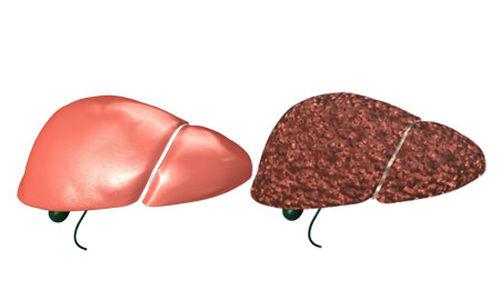 آمال جديدة لعلاج التهاب الكبد الوبائي