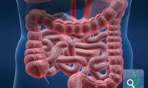 الكشف عن ارتباط جينين بسرطان الأمعاء
