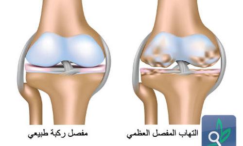 التهاب المفاصل العظمي مرتبط بمواد كيميائية تستخدم كل يوم