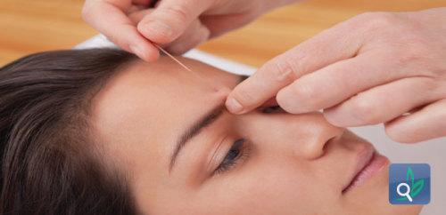 الوخز بالابر يساعد في علاج الحساسية الموسمية
