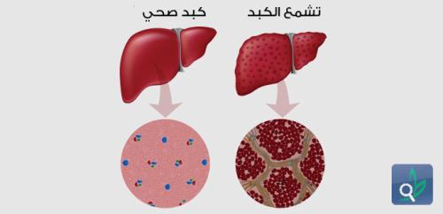 الجنس والعمر يؤثران في الاستجابة لعلاج تليف الكبد