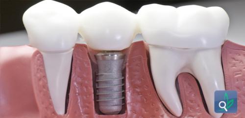 زيادة نجاح زراعة الاسنان