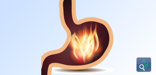 فقدان الوزن يخفف حرقة المعدة