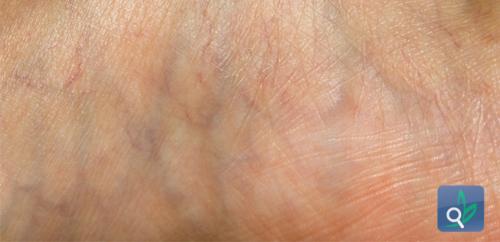الموافقة على علاج غير جراحي لدوالي الأوردة