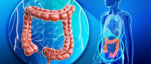 حمض الفوليك وفيتامينات ب 6 و ب 12 لا يقلل خطر الاصابة باورام القولون والمستقيم