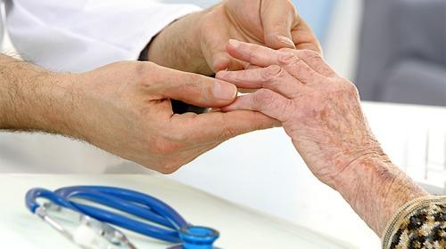 نقص فيتامين د شائع عند المصابين بالتهاب المفاصل الصدفي