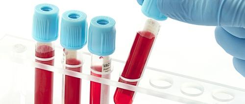 فحوصات دم جديدة تُفيد مرضى الإكتئاب