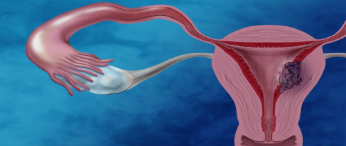 5 أشياء عليك معرفتها عن سرطان عنق الرحم