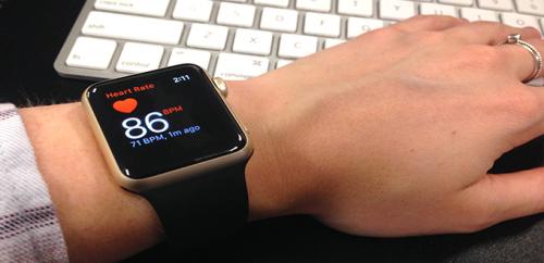 هل تستطيع الساعة الذكية الكشف عن الرجفان الأذيني؟