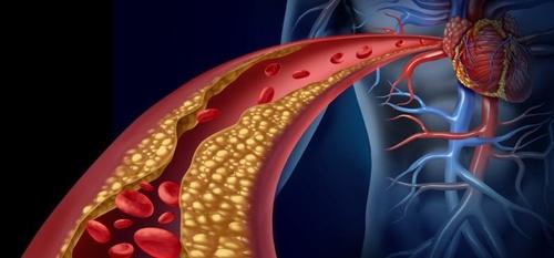 المبادئ التوجيهيبة الجديدة حول مستويات الكوليسترول وصحة القلب