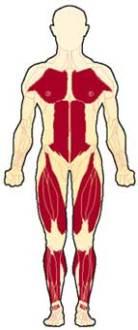 حثل عضلي دوشين